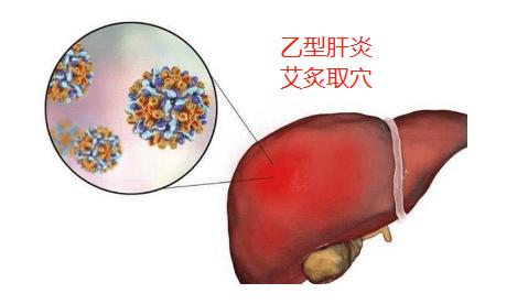 病毒性乙型肝炎艾灸取穴
