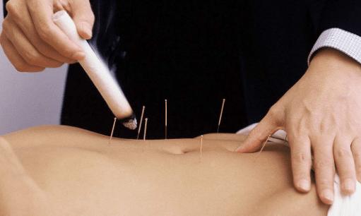 艾灸和针灸的特点与区别